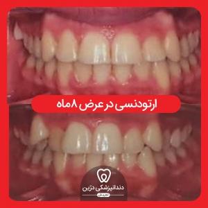 ارتونسی-مرتب کردن-دندان-درین