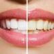 سفید کردن دندان در دندانپزشکی درین