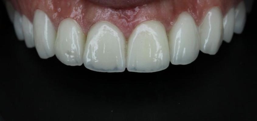 درمان زیبایی دندان