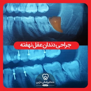 کشیدن-جراحی-دندان-عقل-درین-تجریش