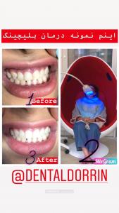 بلیچینگ سفید کردن دندان