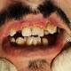 تاثیر سیگار روی دندان