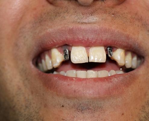 نگهداری از کاشت دندان