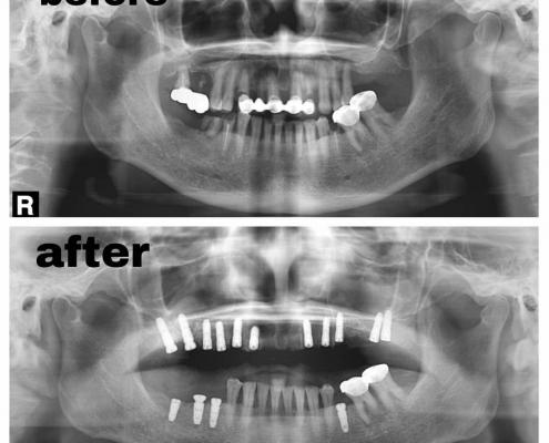 کاشت دندان درین تجریش