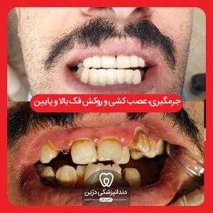 روکش دندان دندانپزشکی درین تجریش