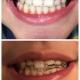 جرم گیری و بروساژ دندانها