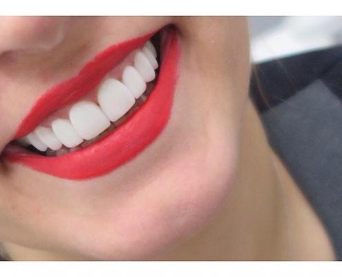 کامپوزیت ونیر درین دندانپزشکی