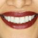 لمینیت-دندانپزشکی-زیبایی