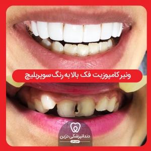 کامپوزیت-دندانپزشکی-درین-تجریش