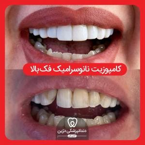 کامپوزیت ونیر درین دندانپزشکی تجریش