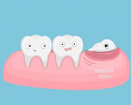 دندون عقل کشیدن جراحی