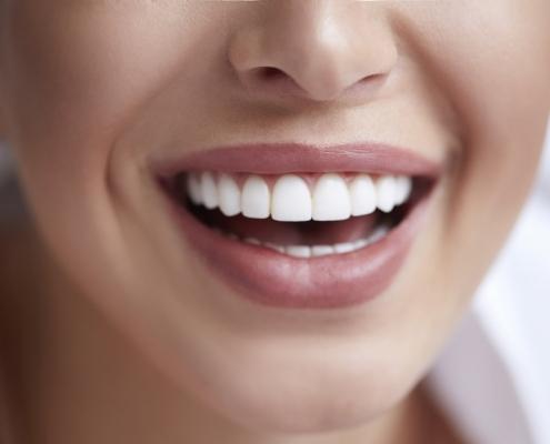 قیمت کامپوزیت دندان ۱۴۰۰